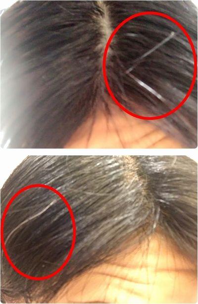 白髪の部分
